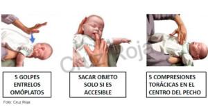 Atragantamientos en niños y lactantes menores de un año